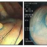胃・大腸の検診
